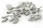 Soigner l'ostéoporose naturellement