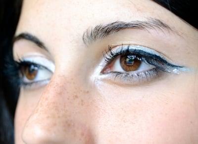 La violation de la pigmentation de la peau et comme de celle-ci traiter