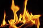 Remèdes naturels pour les brûlures mineures