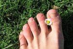 Remèdes naturels pour les ongles incarnés